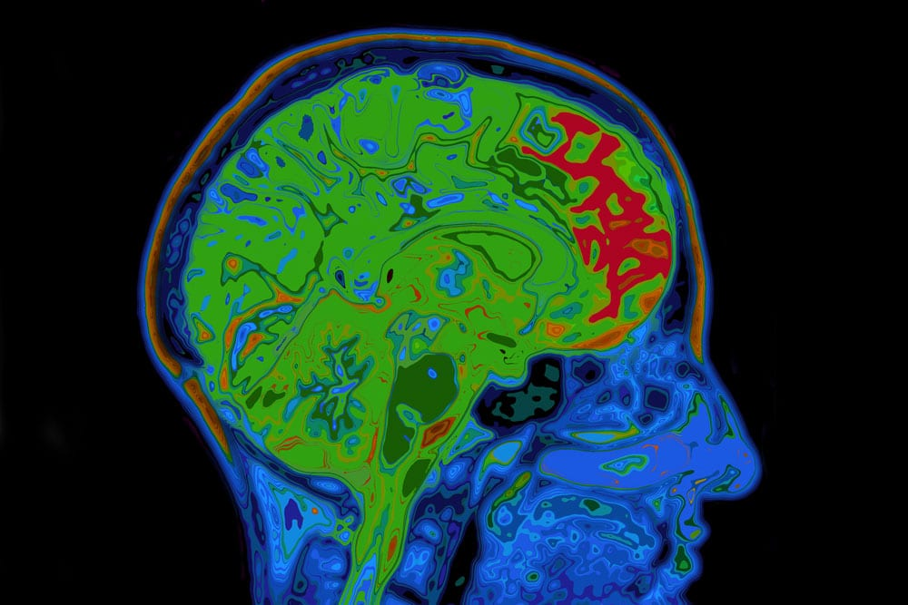 brain fmri scan - photo #18